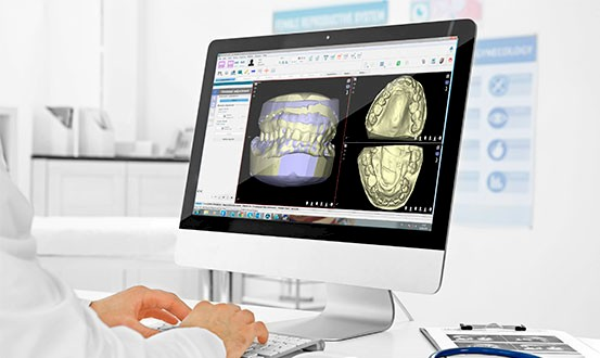 Software Nemoperio | Clínica Dental Peguero Zaragoza